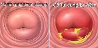 Điều trị polyp cổ tử cung hiệu quả