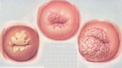 Lộ tuyến  cổ tử cung