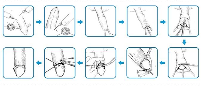Các bước phẫu thuật cắt bao quy đầu