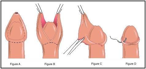 Phương pháp cắt bao quy đầu