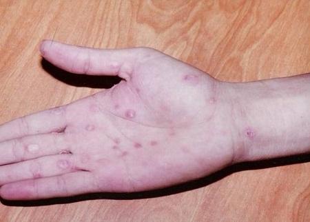 Nguyên nhân và triệu chứng bệnh giang mai