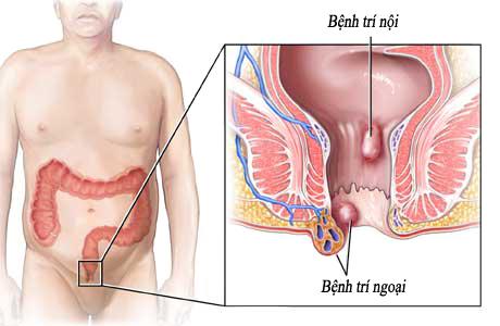Bệnh trĩ nội là gì?