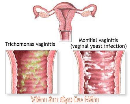Bệnh viêm âm đạo