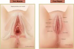 Trước và sau khi thu hẹp âm đạo