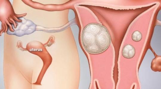 Nguyên nhân bệnh u xơ tử cung